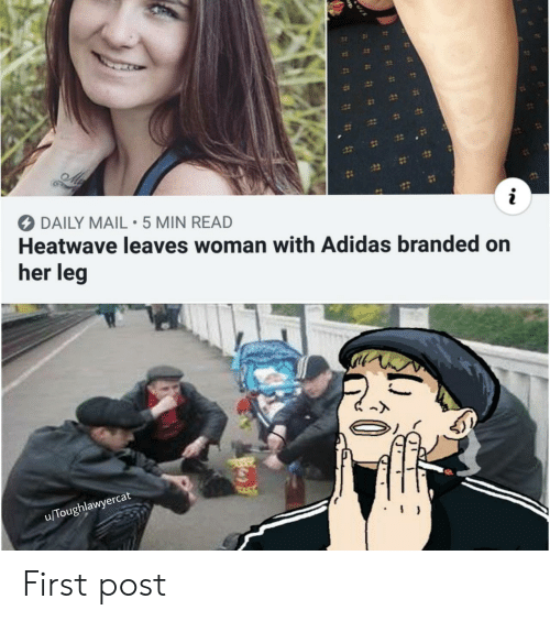 Daily Mail: 12  DAILY MAIL 5 MIN READ  Heatwave leaves woman with Adidas branded on  her leg  u/Toughlawyercat First post