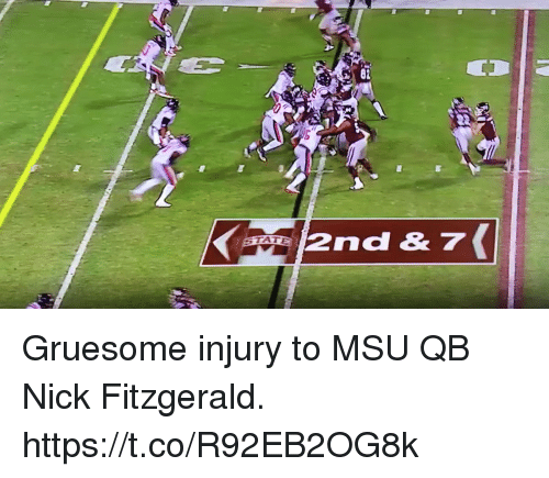 Sports, Nick, and Msu: 82  2nd& 7 Gruesome injury to MSU QB Nick Fitzgerald. https://t.co/R92EB2OG8k