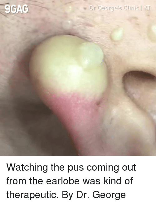 Dank, 🤖, and Pus: 9GAC  Dr George's Clinic | rr Watching the pus coming out from the earlobe was kind of therapeutic.  By Dr. George 美麗新城診所