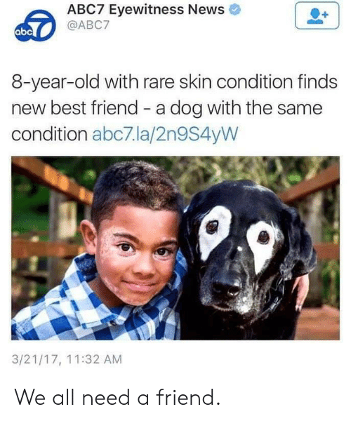 with-the-same: ABC7 Eyewitness News  @ABC7  abc  8-year-old with rare skin condition finds  new best friend - a dog with the same  condition abc7.la/2n9S4yW  3/21/17, 11:32 AM We all need a friend.