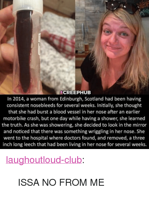 "Leech: ACREEPHUB  In 2014, a woman from Edinburgh, Scotland had been having  consistent nosebleeds for several weeks. Initially, she thought  that she had burst a blood vessel in her nose after an earlier  motorbike crash, but one day while having a shower, she learned  the truth. As she was showering, she decided to look in the mirror  and noticed that there was something wriggling in her nose. She  went to the hospital where doctors found, and removed, a three  inch long leech that had been living in her nose for several weeks <p><a href=""http://laughoutloud-club.tumblr.com/post/167573289868/issa-no-from-me"" class=""tumblr_blog"">laughoutloud-club</a>:</p>  <blockquote><p>ISSA NO FROM ME</p></blockquote>"