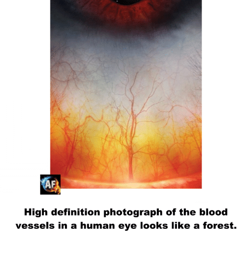 Af, Bloods, and Definitely: AF  High definition photograph of the blood  vessels in a human eye looks like a forest.