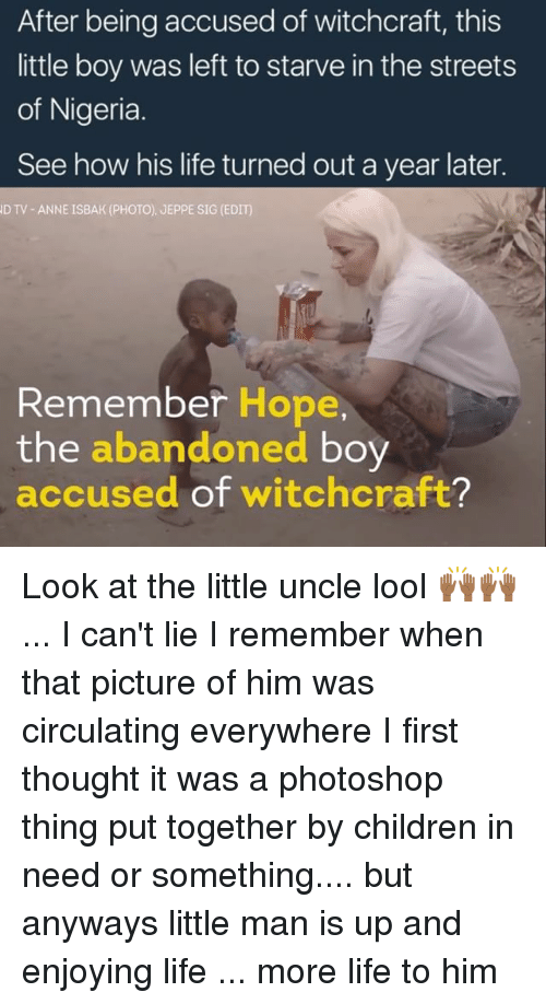 children in need: After being accused of witchcraft, this  little boy was left to starve in the streets  of Nigeria  See how his life turned out a year later.  D TV ANNE ISBAK (PHOTO). JEPPE SIG (EDIT)  Remember Hope,  the  abandoned  boy  accused of witchcraft? Look at the little uncle lool 🙌🏾🙌🏾 ... I can't lie I remember when that picture of him was circulating everywhere I first thought it was a photoshop thing put together by children in need or something.... but anyways little man is up and enjoying life ... more life to him