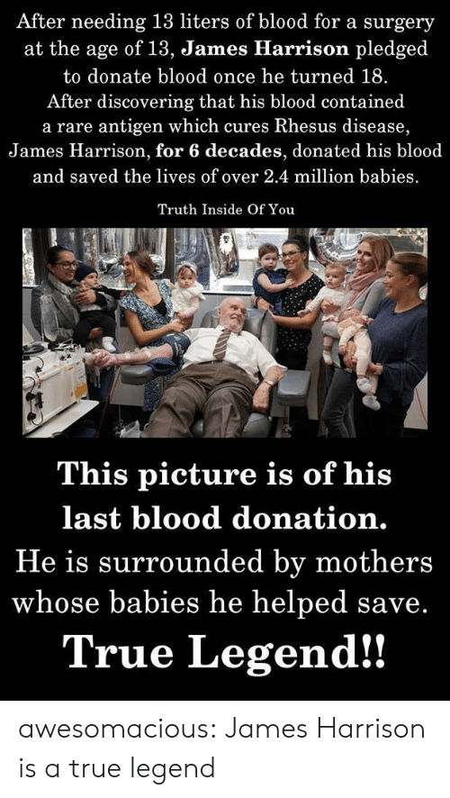 Million Babies: After needing 13 liters of blood for a surgery  at the age of 13, James Hlarrison pledged  to donate blood once he turned 18.  After discovering that his blood contained  a rare antigen which cures Rhesus disease,  James Harrison, for 6 decades, donated his blood  and saved the lives of over 2.4 million babies  Truth Inside Of You  This picture is of his  last blood donation.  He is surrounded by mothers  whose babies he helped save.  True Legend!! awesomacious:  James Harrison is a true legend