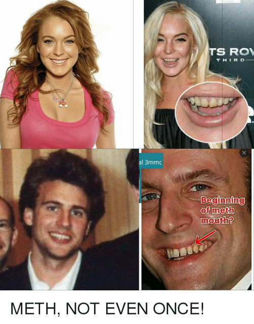 Als, Meth, and Once: al 3mmc  TSS ROV  T H I R D  Beginning  of meth  mouth METH, NOT EVEN ONCE!