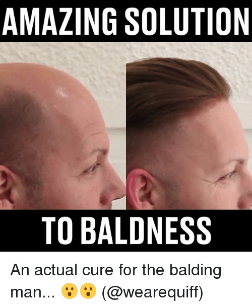 Memes, Amazing, and 🤖: AMAZING SOLUTION  TO BALDNESS An actual cure for the balding man... 😮😮 (@wearequiff)