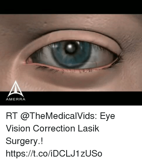 lasik vision correction essay Sign up for our student database of sample essays and view a sample essay on lasik vision correction as well as other 480,000 college papers find free essays, free.