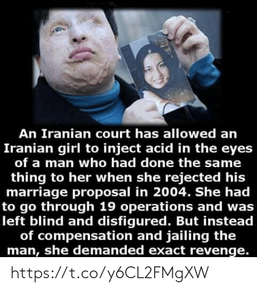 Iranian: An Iranian court has allowed an  Iranian girl to inject acid in the eyes  of a man who had done the same  thing to her when she rejected his  marriage proposal in 2004. She had  to go through 19 operations and was  left blind and disfigured. But instead  of compensation and jailing the  man, she demanded exact revenge. https://t.co/y6CL2FMgXW