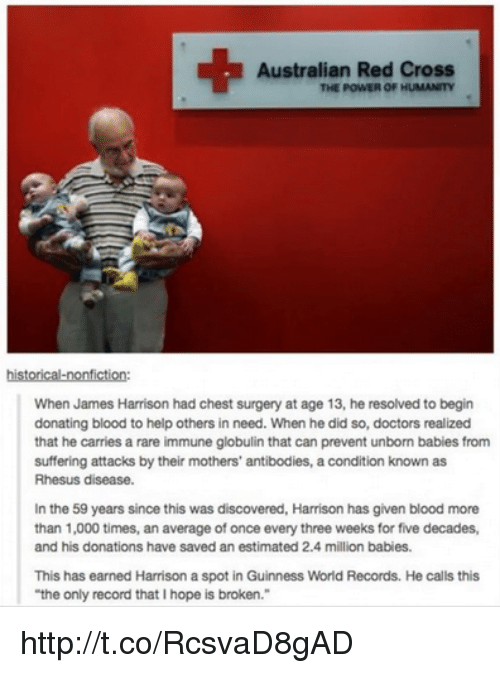 """Million Babies: Australian Red Cross  THE POWER OF HUMANITY  historical-nonfiction:  When James Harrison had chest surgery at age 13, he resolved to begin  donating blood to help others in need. When he did so, doctors realized  that he carries a rare immune globulin that can prevent unborn babies from  suffering attacks by their mothers' antibodies, a condition known as  Rhesus disease.  In the 59 years since this was discovered, Harrison has given blood more  than 1,000 times, an average of once every three weeks for five decades,  and his donations have saved an estimated 2.4 million babies.  This has earned Harrison a spot in Guinness World Records. He calls this  """"the only record that Ihope is broken."""" http://t.co/RcsvaD8gAD"""