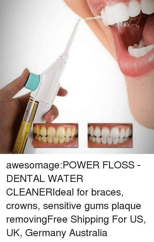 Braces: awesomage:POWER FLOSS - DENTAL WATER CLEANERIdeal for braces, crowns, sensitive gums  plaque removingFree Shipping For US, UK, Germany  Australia