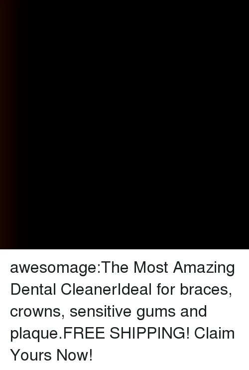 Braces: awesomage:The Most Amazing Dental CleanerIdeal for braces, crowns, sensitive gums and plaque.FREE SHIPPING! Claim Yours Now!