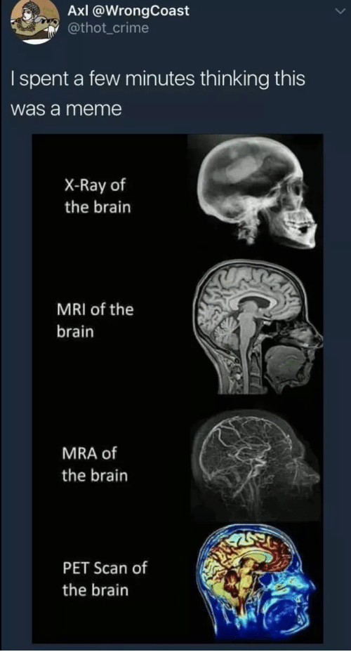 Scan: AxI @WrongCoast  @thot_crime  I spent a few minutes thinking this  was a meme  X-Ray of  the brain  MRI of the  brain  MRA of  the brain  PET Scan of  the brain