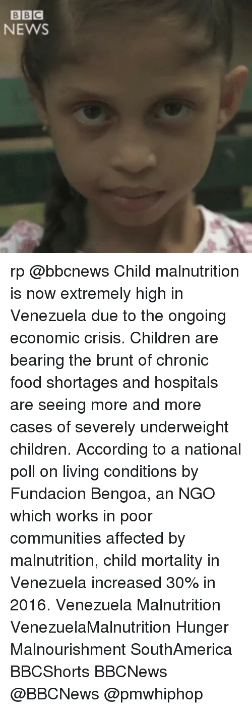 Children, Food, and Memes: BBC  NEWS rp @bbcnews Child malnutrition is now extremely high in Venezuela due to the ongoing economic crisis. Children are bearing the brunt of chronic food shortages and hospitals are seeing more and more cases of severely underweight children. According to a national poll on living conditions by Fundacion Bengoa, an NGO which works in poor communities affected by malnutrition, child mortality in Venezuela increased 30% in 2016. Venezuela Malnutrition VenezuelaMalnutrition Hunger Malnourishment SouthAmerica BBCShorts BBCNews @BBCNews @pmwhiphop