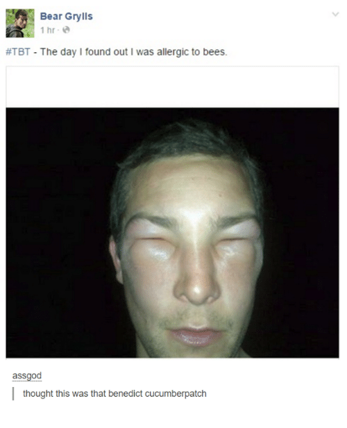 Benedicted: Bear Grylls  1 hr e  #TBT-The day I found out I was allergic to bees.  assgod  thought this was that benedict cucumberpatch