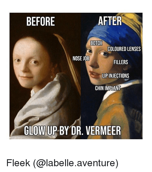 Glow Up: BEFORE  AFTER  BOTOX  COLOURED LENSES  NOSE JOB  FILLERS  LIP INJECTIONS  CHIN IMPLANT  GLOW UP BY DR. VERMEER Fleek (@labelle.aventure)