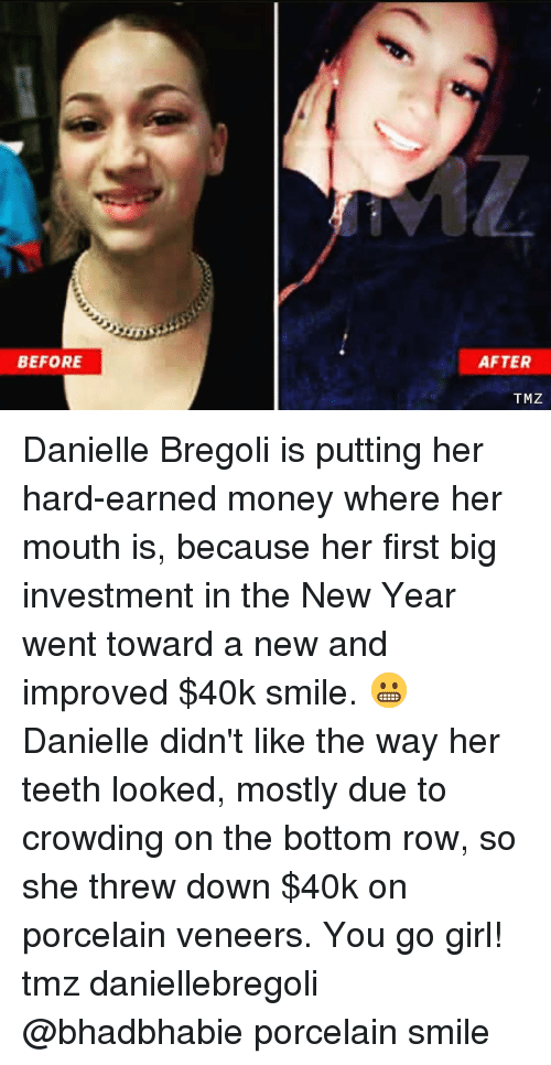 danielle: BEFORE  AFTER  TMZ Danielle Bregoli is putting her hard-earned money where her mouth is, because her first big investment in the New Year went toward a new and improved $40k smile. 😬 Danielle didn't like the way her teeth looked, mostly due to crowding on the bottom row, so she threw down $40k on porcelain veneers. You go girl! tmz daniellebregoli @bhadbhabie porcelain smile
