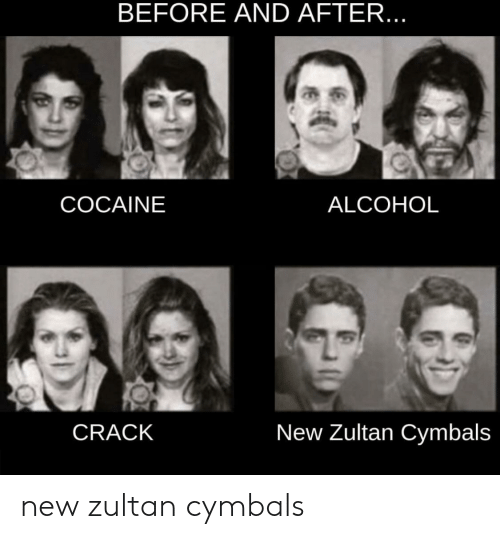 cymbals: BEFORE AND AFTER  COCAINE  ALCOHOL  CRACkK  New Zultan Cymbals new zultan cymbals