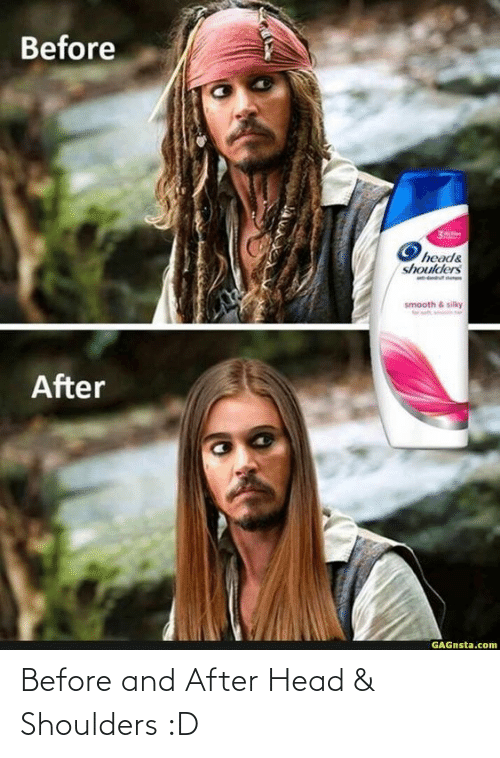 Shoulders: Before and After Head & Shoulders :D