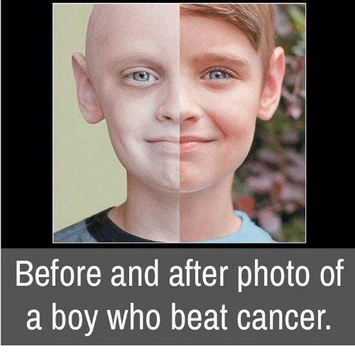 Memes, Cancer, and Boy: Before and after photo of  a boy who beat cancer.