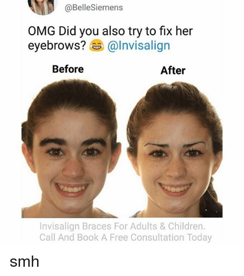 Children, Omg, and Smh: @Bellesiemens  OMG Did you also try to fix her  eyebrows?  @Invisalign  Before  After  Invisalign Braces For Adults & Children.  Call And Book A Free Consultation Today smh