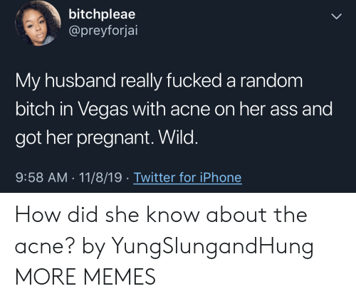 Las Vegas: bitchpleae  @preyforjai  My husband really fucked a random  bitch in Vegas with acne on her ass and  got her pregnant. Wild.  9:58 AM 11/8/19 Twitter for iPhone How did she know about the acne? by YungSlungandHung MORE MEMES