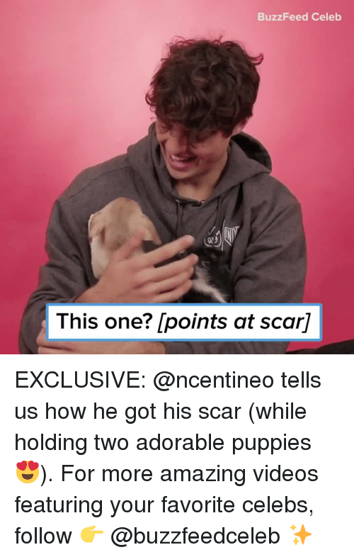 Puppies, Videos, and Buzzfeed: BuzzFeed Celeb  This one? [points at scar] EXCLUSIVE: @ncentineo tells us how he got his scar (while holding two adorable puppies 😍). For more amazing videos featuring your favorite celebs, follow 👉 @buzzfeedceleb ✨