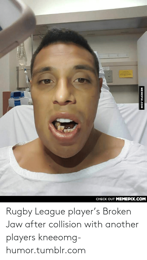 Rugby: CНЕCK OUT MЕМЕРІХ.COM  MEMEPIX.COM Rugby League player's Broken Jaw after collision with another players kneeomg-humor.tumblr.com