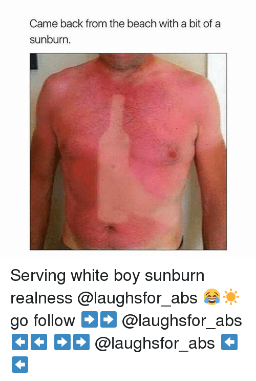 Memes, Beach, and White: Came back from the beach with a bit of a  sunburn Serving white boy sunburn realness @laughsfor_abs 😂☀️ go follow ➡️➡️ @laughsfor_abs ⬅️⬅️ ➡️➡️ @laughsfor_abs ⬅️⬅️