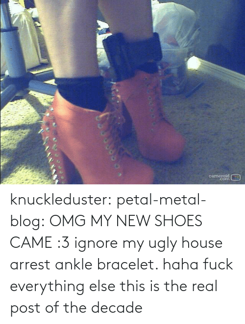 ankle: cameroid  corn knuckleduster: petal-metal-blog: OMG MY NEW SHOES CAME :3 ignore my ugly house arrest ankle bracelet. haha fuck everything else this is the real post of the decade