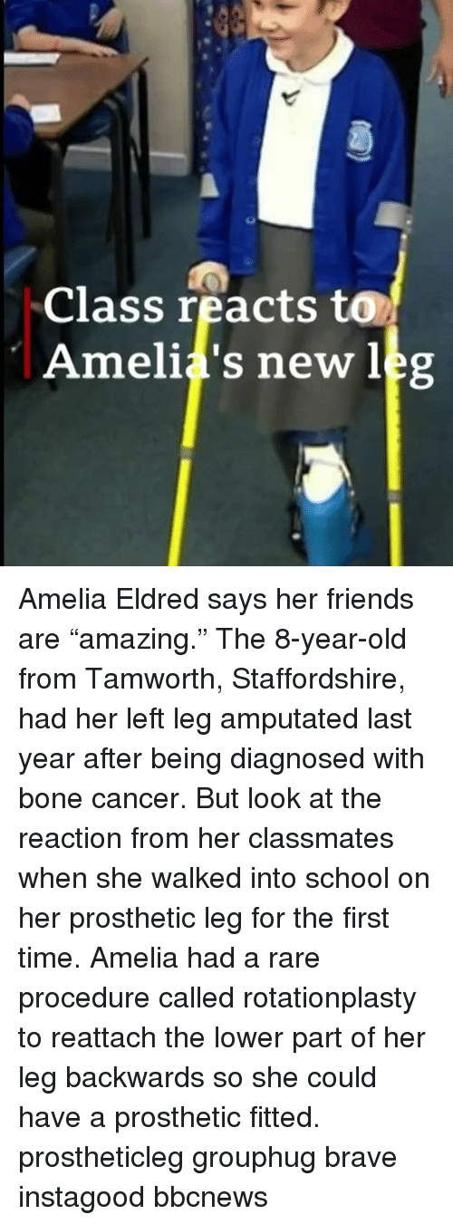 """Friends, Memes, and School: Class reacts to  Amelia's new leg Amelia Eldred says her friends are """"amazing."""" The 8-year-old from Tamworth, Staffordshire, had her left leg amputated last year after being diagnosed with bone cancer. But look at the reaction from her classmates when she walked into school on her prosthetic leg for the first time. Amelia had a rare procedure called rotationplasty to reattach the lower part of her leg backwards so she could have a prosthetic fitted. prostheticleg grouphug brave instagood bbcnews"""