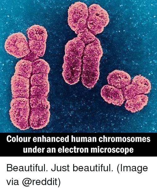Electronical: Colour enhanced human chromosomes  under an electron microscope Beautiful. Just beautiful. (Image via @reddit)