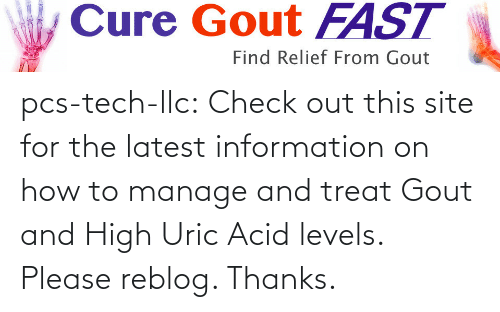 gout: Cure Gout FAST  Find Relief From Gout pcs-tech-llc:  Check out this site for the latest information on how to manage and treat Gout and High Uric Acid levels. Please reblog. Thanks.