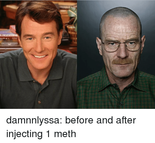 Injecting: damnnlyssa:  before and after injecting 1 meth
