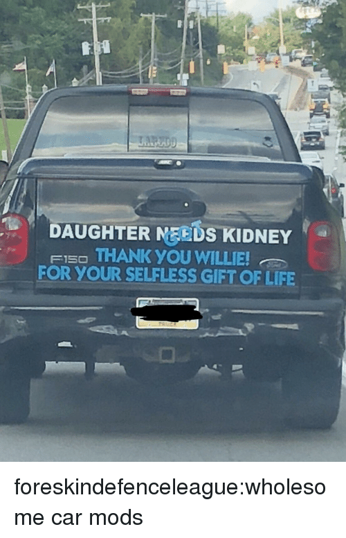 willie: DAUGHTER MEEDS KIDNEY  FI5O THANK YOU WILLIE  FOR YOUR SELFLESS GIFT OF LIFE foreskindefenceleague:wholesome car mods