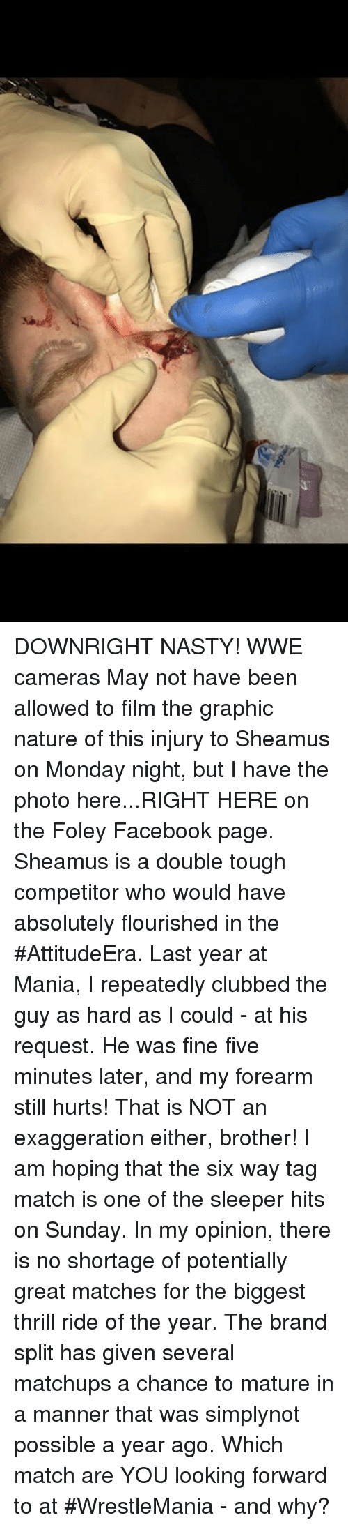 sheamus: DOWNRIGHT NASTY!  WWE cameras  May not have been allowed to film the graphic nature of this injury to Sheamus on Monday night,  but I have the photo here...RIGHT HERE on the Foley Facebook page. Sheamus is a double  tough competitor who would have absolutely flourished in the #AttitudeEra.  Last year at Mania, I repeatedly clubbed the guy as hard as I could - at his request. He was fine five minutes later, and my forearm still hurts! That is NOT an  exaggeration either, brother! I am hoping that the six way tag match is one of the sleeper hits on Sunday.  In my opinion, there is no shortage of potentially great matches for the biggest thrill ride of the year. The brand split has given several matchups a chance to mature in a manner that was simplynot possible a year ago.   Which match are YOU looking forward to at #WrestleMania - and why?