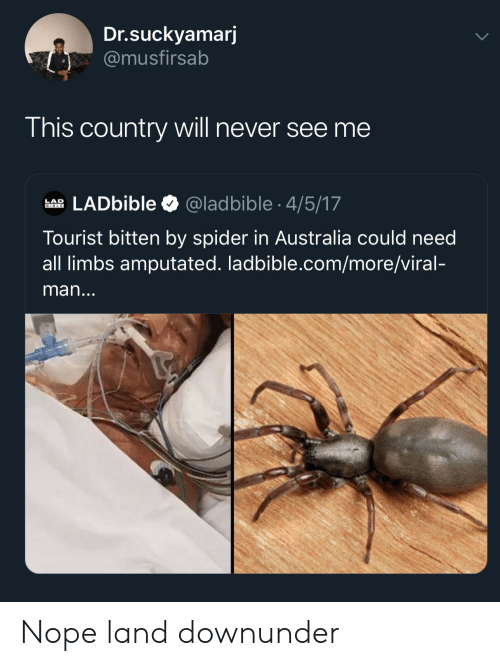 bitten: Dr.suckyamarj  @musfirsab  This country will never see me  LADbible  @ladbible 4/5/17  LAD  BIBLE  Tourist bitten by spider in Australia could need  all limbs amputated. ladbible.com/more/viral-  man... Nope land downunder