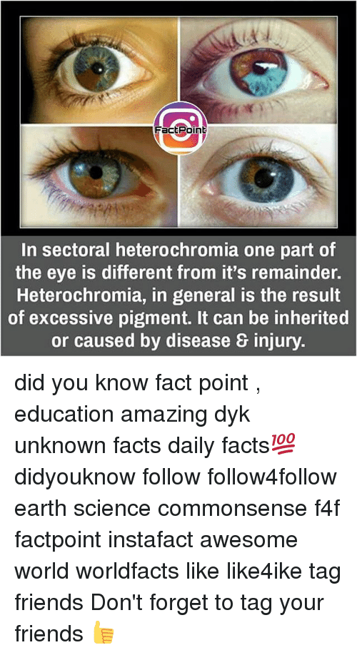 Facts, Friends, and Memes: Fact Point  In sectoral heterochromia one part of  the eye is different from it's remainder.  Heterochromia, in general is the result  of excessive pigment. It can be inherited  or caused by disease & injury. did you know fact point , education amazing dyk unknown facts daily facts💯 didyouknow follow follow4follow earth science commonsense f4f factpoint instafact awesome world worldfacts like like4ike tag friends Don't forget to tag your friends 👍