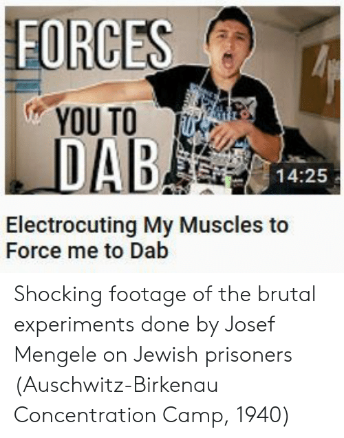concentration camp: FORCE  YOU TO UE  14:25  Electrocuting My Muscles to  Force me to Dab Shocking footage of the brutal experiments done by Josef Mengele on Jewish prisoners (Auschwitz-Birkenau Concentration Camp, 1940)