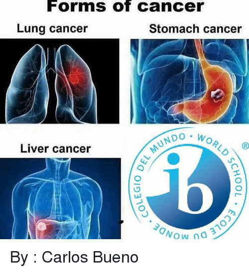 International Baccalaureate: Forms of Cancer  Lung cancer  Stomach cancer  NDO W  Liver cancer  Wow 3 By : Carlos Bueno