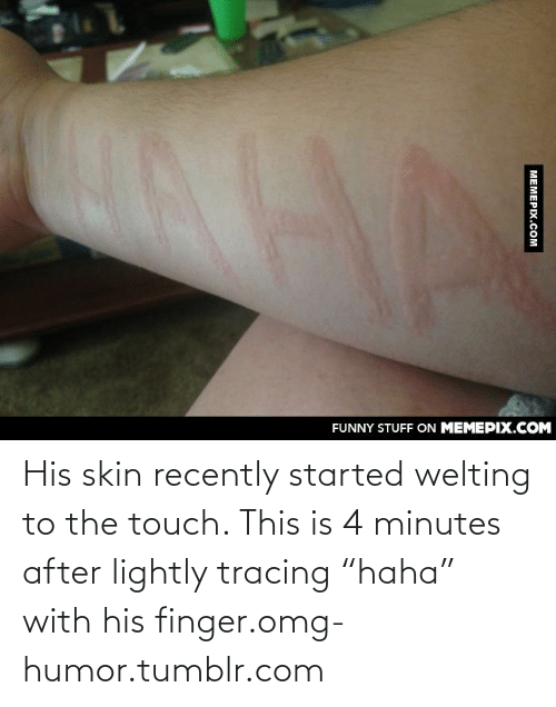 """Tracing: FUNNY STUFF ON MEMEPIX.COM  MEMEPIX.COM His skin recently started welting to the touch. This is 4 minutes after lightly tracing """"haha"""" with his finger.omg-humor.tumblr.com"""