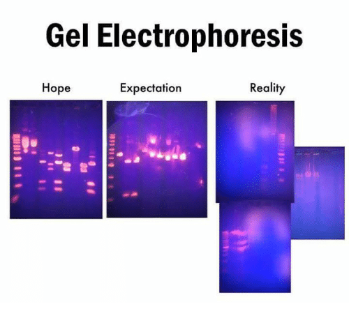 Expectation Reality: Gel Electrophoresis  Hope  Expectation  Reality