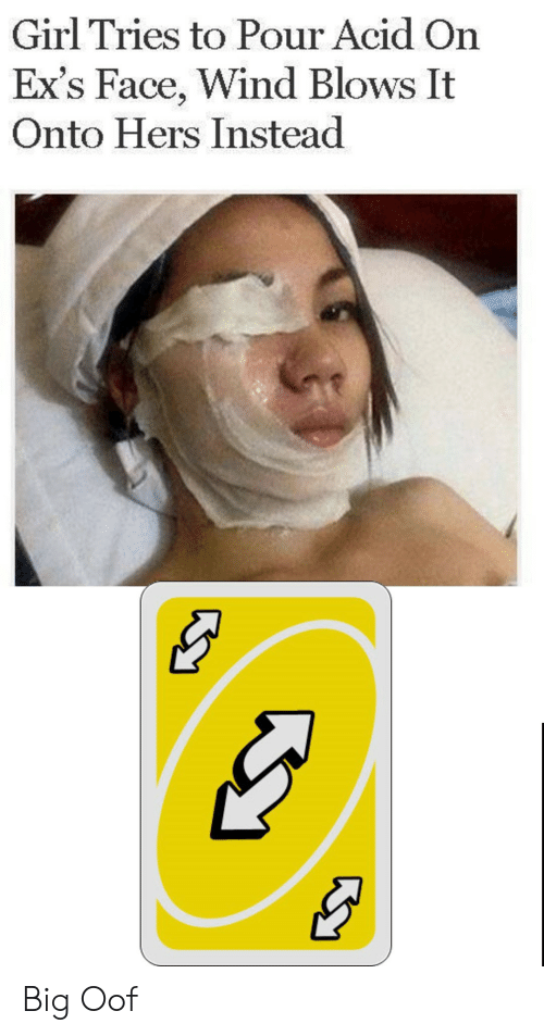 acid: Girl Tries to Pour Acid On  Ex's Face, Wind Blows It  Onto Hers Instead Big Oof