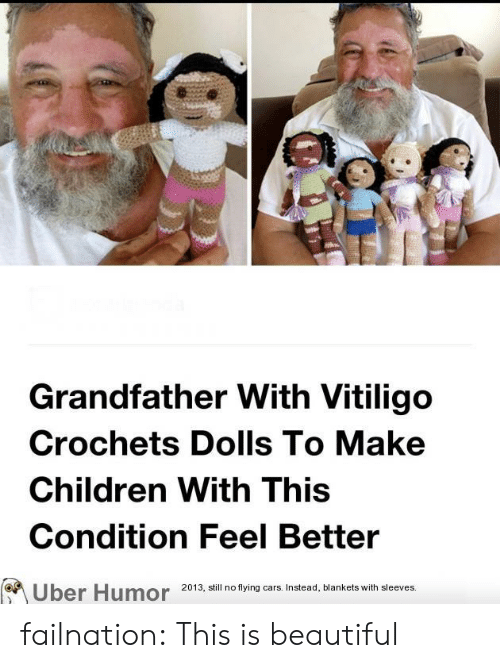 flying cars: Grandfather With Vitiligo  Crochets Dolls To Make  Children With This  Condition Feel Better  2013, still no flying cars. Instead, blankets with sleeves.  Uber Humor failnation:  This is beautiful
