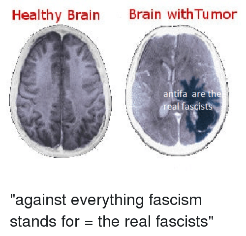"Brain, The Real, and Fascism: Healthy Brain  Brain withTumor  antifa are the  al fascists ""against everything fascism stands for = the real fascists"""