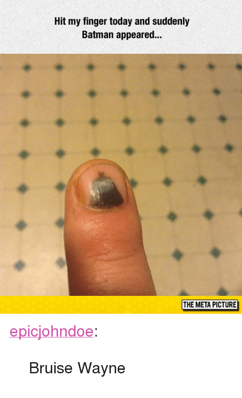"Batman, Tumblr, and Blog: Hit my finger today and suddenly  Batman appeared..  THE META PICTURE <p><a href=""https://epicjohndoe.tumblr.com/post/172706767364/bruise-wayne"" class=""tumblr_blog"">epicjohndoe</a>:</p>  <blockquote><p>Bruise Wayne</p></blockquote>"