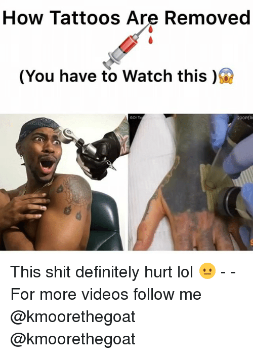 Definitely, Lol, and Memes: How Tattoos Are Removed  (You have to watch this )  200PER This shit definitely hurt lol 😐 - - For more videos follow me @kmoorethegoat @kmoorethegoat