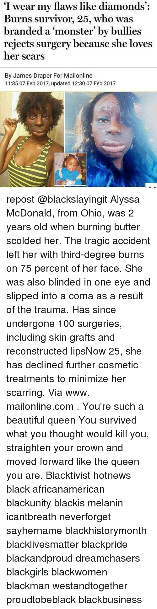 """Beautiful, McDonalds, and Memes: """"I wear my flaws like diamonds  Burns survivor, 25, who was  branded a monster' by bullies  rejects surgery because she loves  her scars  By James Draper For Mailonline  11:35 07 Feb 2017, updated 12:30 07 Feb 2017 repost @blackslayingit Alyssa McDonald, from Ohio, was 2 years old when burning butter scolded her. The tragic accident left her with third-degree burns on 75 percent of her face. She was also blinded in one eye and slipped into a coma as a result of the trauma. Has since undergone 100 surgeries, including skin grafts and reconstructed lipsNow 25, she has declined further cosmetic treatments to minimize her scarring. Via www. mailonline.com . You're such a beautiful queen You survived what you thought would kill you, straighten your crown and moved forward like the queen you are. Blacktivist hotnews black africanamerican blackunity blackis melanin icantbreath neverforget sayhername blackhistorymonth blacklivesmatter blackpride blackandproud dreamchasers blackgirls blackwomen blackman westandtogether proudtobeblack blackbusiness"""