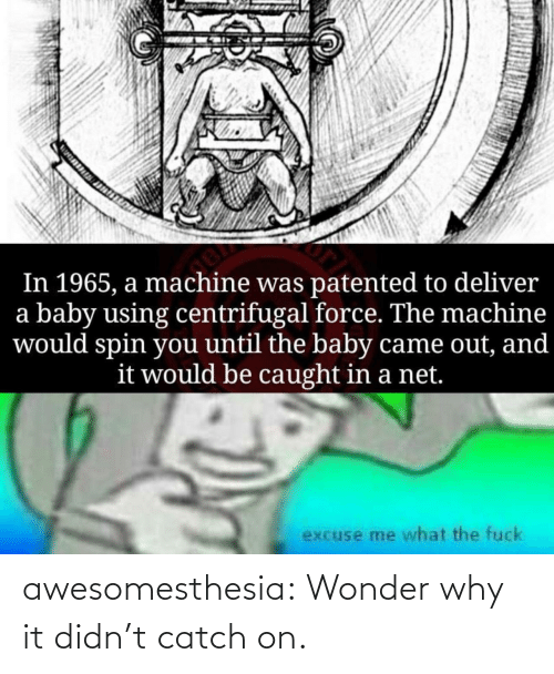 the baby: In 1965, a machine was patented to deliver  a baby using centrifugal force. The machine  would spin you until the baby came out, and  it would be caught in a net.  excuse me what the fuck awesomesthesia:  Wonder why it didn't catch on.
