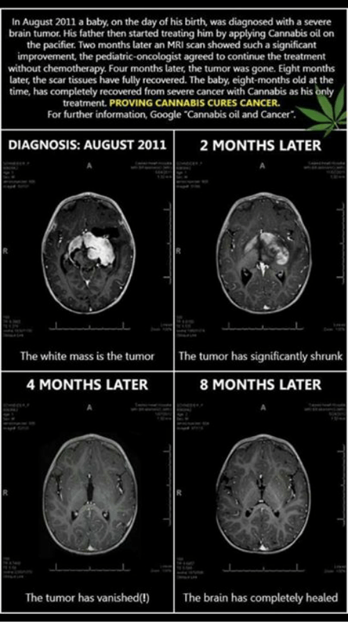 Cannabis: In August 2011 a baby, on the day of his birth, was diagnosed with a severe  brain tumor. His father then started treating him by applying Cannabis oil on  the pacifier. Two months later an MRI scan showed such a significant  improvement, the pediatric  oncologist agreed to continue the treatment  without chemotherapy. Four months later, the tumor was gone. Eight months  later, the scar tissues have fully recovered. The baby eight-months old at the  time, has completely recovered from severe cancer with Cannabis as his only  treatment. PROVING CANNABIS CURES CANCER.  For further information, Google Cannabis oil and Cancer  DIAGNOSIS: AUGUST 2011  2 MONTHS LATER.  The white mass is the tumor The tumor has significantly shrunk  4 MONTHS LATER  8 MONTHS LATER.  The tumor has vanished  The brain has completely healed