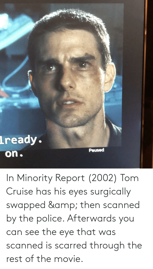 Tom Cruise: In Minority Report (2002) Tom Cruise has his eyes surgically swapped & then scanned by the police. Afterwards you can see the eye that was scanned is scarred through the rest of the movie.